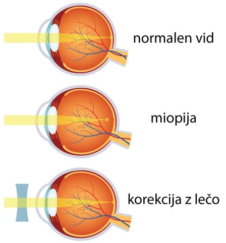 Miopija